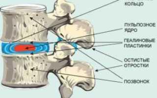 Парамедианная протрузия межпозвонкового диска: что это такое и как лечить, причины и симптомы болезни ,методы диагностики и лечения