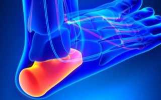 Болит пятка и больно наступать: признаки и возможные заболевания, способы снять неприятные ощущения и методики терапии болезни