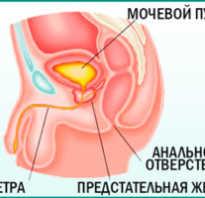Лечение простатита синий йод