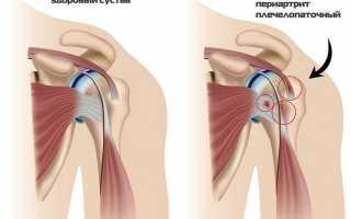 Периартрит плечевого сустава: клиническая картина недуга, как диагностируется и лечится заболевание в разных формах, метод физиотерапии и народная медицина в борьбе с недугом