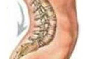Шейный лордоз: классификация и признаки патологии, диагностика и методики терапии, лечебная физическая культура и профилактические меры