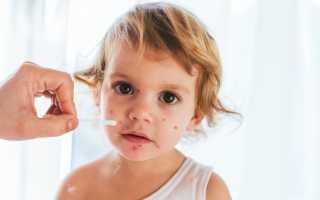 Ветрянка у детей: сколько дней длится инкубация и как передается болезнь, кульминационный период и методика терапии заболевания