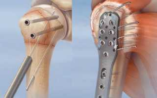 Остеосинтез при переломе кости: виды, показания и противопоказания метода, техника операции, осложнения после