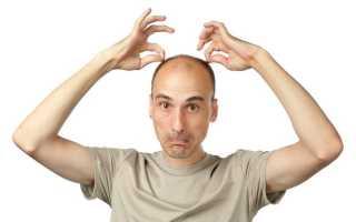 Выпадение волос у мужчин: причины и лечение средствами, шампунями, таблетками, профилактика