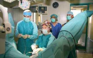 Радикальная простатэктомия: виды и способы реабилитации после операции
