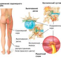 Лечение седалищного нерва медикаментами: причины и симптомы заболевания, обзор препаратов, принцип действия, совмещение лекарственных средств с физиотерапией
