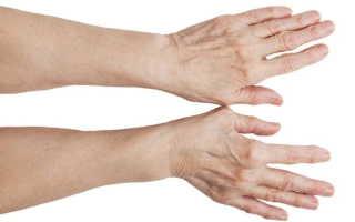 Шишка на большом пальце руки: что это может быть, причины появления, как лечить медикаментозно и показания к удалению