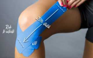 Эффективность тейпирования колена при артрозе: виды клейких лент и принципы их воздействия на заболевание, алгоритм наложения тейпов и противопоказания к процедуре