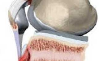 Болезнь шляттера: признаки возникновения и клиническая картина патологии, методы терапии и восстановительный период, показания для операции