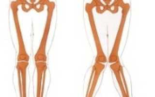 Х — образные ноги у ребенка: что это такое, симптомы деформации, гимнастика и массаж в борьбе с болезнью, консервативные методы терапии