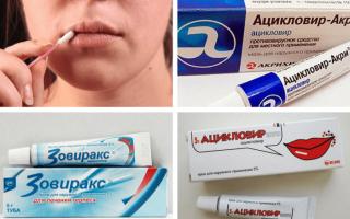 Мази от герпеса на губах — цены на лучшие средства
