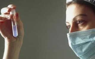 Лечение повышенной вязкости в спермограмме