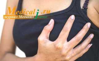 Жжение в груди: что это такое и как лечить, возможные заболевания и способы снять неприятные ощущения, тактики терапии