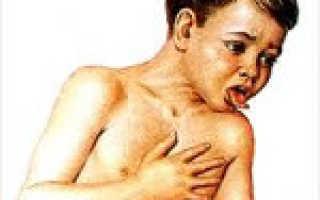 Коклюш у детей: возбудитель заболевания, пути передачи и механизм развития патологии, первые признаки и основные симптомы, методы лечения и возможные осложнения