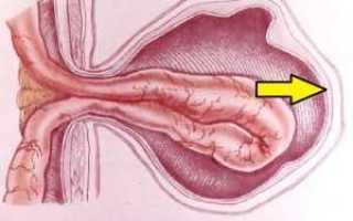 Паховая грыжа у женщин: диагностические процедуры и меры профилактики, разновидности болезни и ккакому врачу обратиться, способы терапии и всегда ли нужна операция