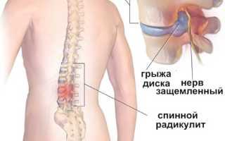 Лечение седалищного нерва народными средствами: эффективные мази ирастирки, простые рецепты приготовления компрессов и настоев, лечебная гимнастика и массаж