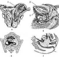Гнойные заболевания таза. Параметрит