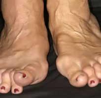 Воспаление суставов стопы: причины и симптомы заболевания, лечение медикаментами и народными средствами, физиотерапевтические мероприятия и правила питания при патологии