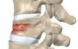 Компрессионный перелом позвоночника: причины и виды травм, первая помощь и признаки патологии, особенности восстановления и прогноз